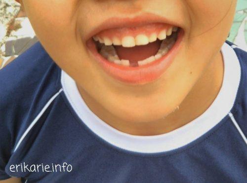 抜けた乳歯の画像