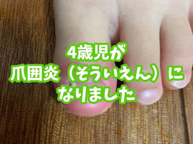 4歳児の爪囲炎(そういえん)